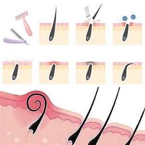 Как удалить вросший волос, убрать пятна с помощью средств, отзывы