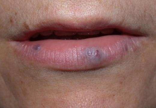 Черные точки на губах и вокруг них: что это такое и как избавиться