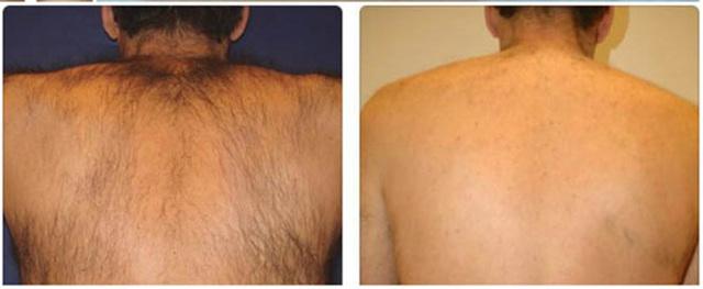 Мужская эпиляция и депиляция: виды процедур для разных участков кожи