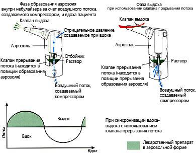 Ингалятор - небулайзер: инструкция по применению, как правильно пользоваться