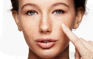 Пигментные пятна после загара на солнце: почему появляется пигментация на коже лица и тела