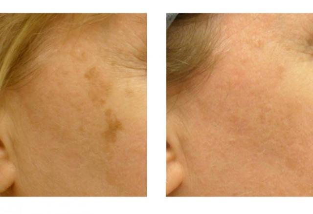 Удаление пигментных пятен лазером: последствия, отзывы об эффективности лечения лица, фото