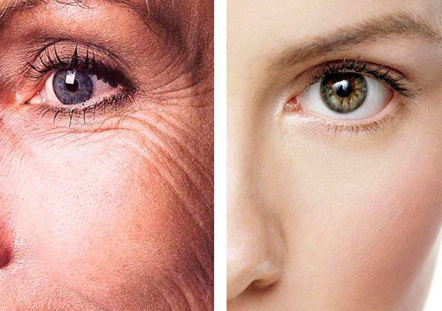 Морщины под глазами: как избавиться в домашних условиях быстро, средства, отзывы