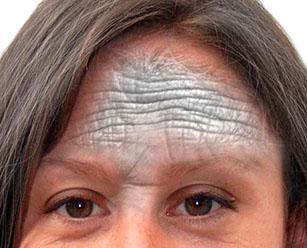 Как убрать мимические морщины на лбу: избавиться в домашних условиях косметическими процедурами