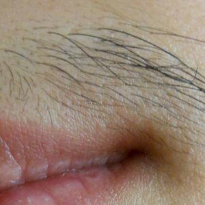 Электроэпиляция усиков (верхней губы): особенности процедуры, фото до и после, отзывы
