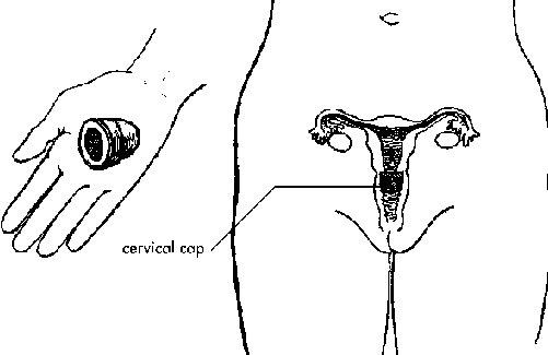 Цервикальный противозачаточный колпачок: что это такое, как им пользоваться, отзывы