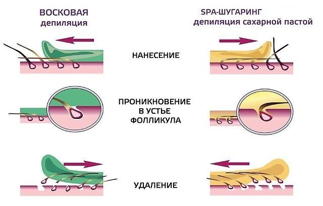 Биоэпиляция воском в салоне и дома: что это такое, плюсы и минусы, фото до и после, видео, отзывы