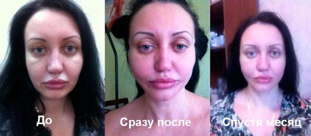 Нити для подтяжки лица Аптос: как проходит процедура, фото до и после, положительные и отрицательные отзывы