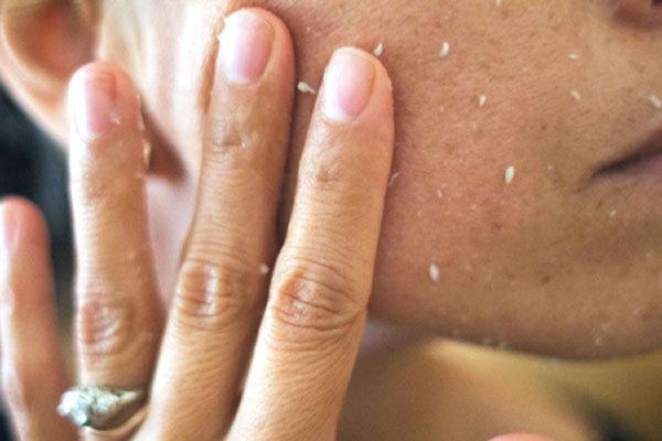 Пилинг и скраб — в чем разница, что лучше использовать