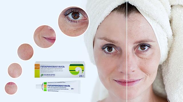 Гепариновая мазь от морщин под глазами: как применять, отзывы