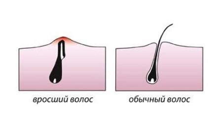 Почему врастают волосы после эпиляции, что делать и как избежать
