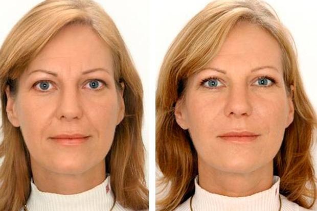 Ботокс в носогубные складки: показания и противопоказания, фото до и после, отзывы