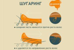 Шугаринг или эпилятор: что выбрать, отзывы