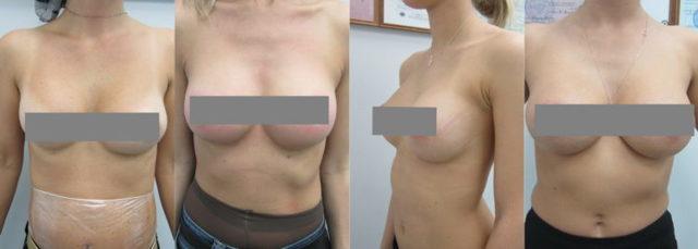 Подтяжка груди нитями: виды, фото до и после, отзывы
