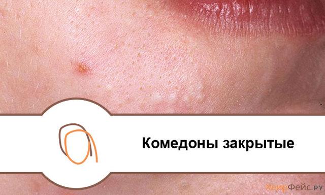 Комедоны на лице: что это такое, какие бывают, фото открытых и закрытых, нужно ли лечить чёрные точки