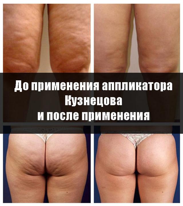 Аппликаторы Кузнецова и Ляпко от целлюлита: как использовать, фото до и после, отзывы