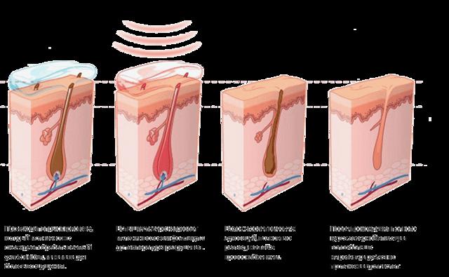 Диодная лазерная эпиляция: что это такое, фото до и после, отзывы