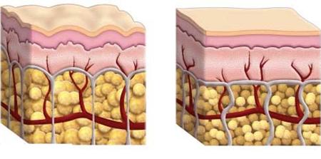 Как убрать целлюлит быстро: выбор средства для лечения, отзывы