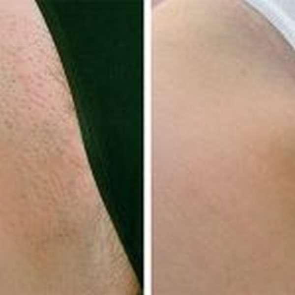 Элос эпиляция бикини: что это, принцип действия, фото до и после, отзывы