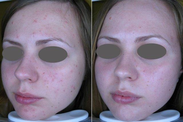 Лазерная шлифовка лица — шокирующие фото до и после + отзывы