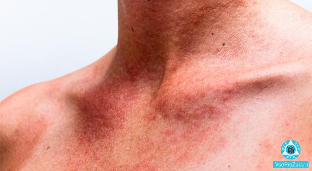 Чешется кожа после загара: почему возникает зуд тела, что делать, чем снять