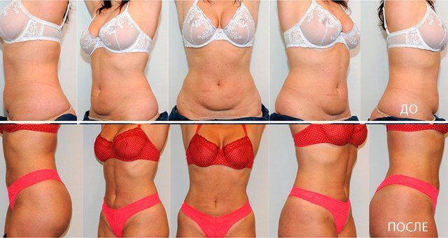 Массажер для пресса живота и боков: как добиться похудения