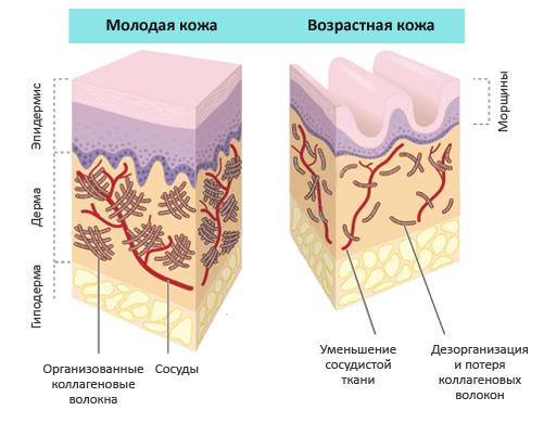 Коллариум: что такое коллагеновый солярий, чем отличается от коллагенария, отзывы о загаре