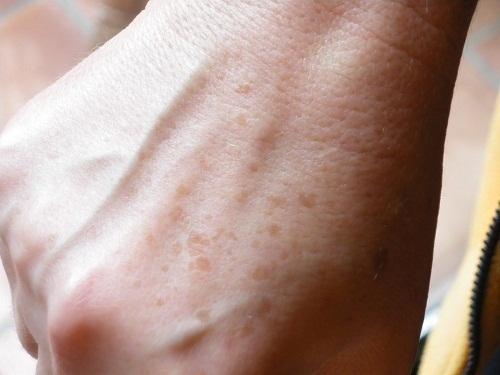Александритовый лазер для эпиляции: принцип работы, как проходит удаление волос, эффективность, отзывы