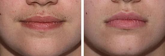 Лазерная эпиляция верхней губы у женщин: как делают, противопоказания и последствия, фото до и после, отзывы