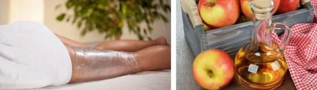 Яблочный уксус от целлюлита в домашних условиях: свойства, способ применения, фото до и после, отзывы