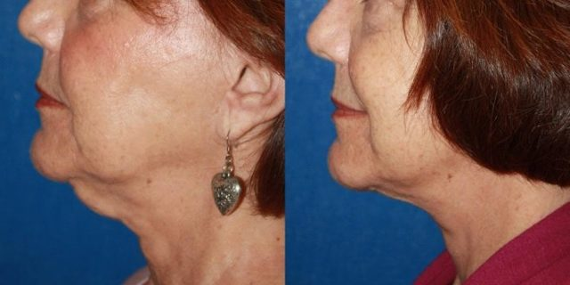 Эндоскопическая подтяжка лица: что это такое, особенности процедуры, фото до и после, отзывы