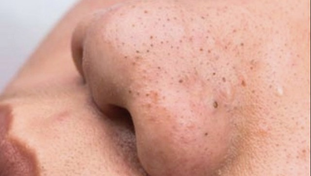 От чего появляются черные точки на лице: причины и меры профилактики