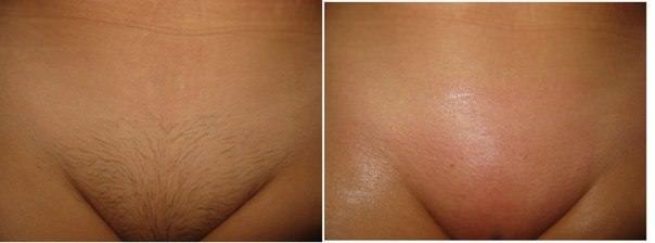 Депиляция глубокого бикини: особенности процедуры, фото до и после, отзывы