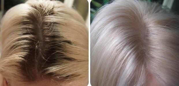Седина волос: причины, в том числе ранней в молодом возрасте, у женщин и мужчин, в чем проблема и чем лечить